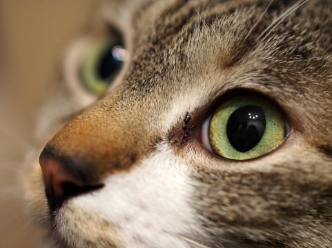 肩こりの原因「目のズレ」の簡単チェック法