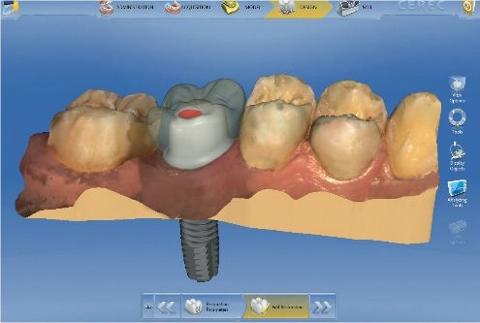 1日で治療完了「デジタル歯科」しかも割安