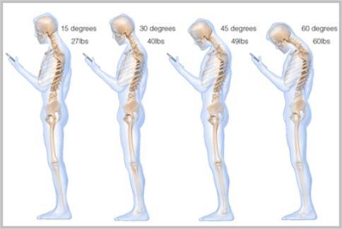 首が痛い原因…スマホ操作は8歳児の肩車と同じ負荷