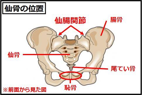 腰痛の原因は仙骨の角度