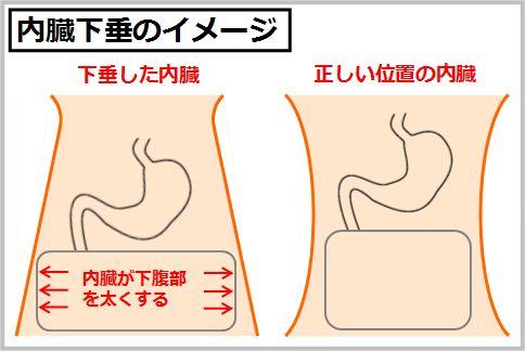 インナーマッスルと内臓下垂