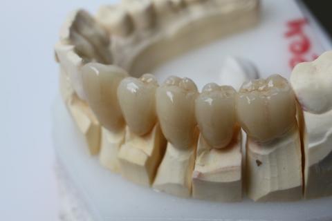 ヴァニラが世界一白い歯に整形